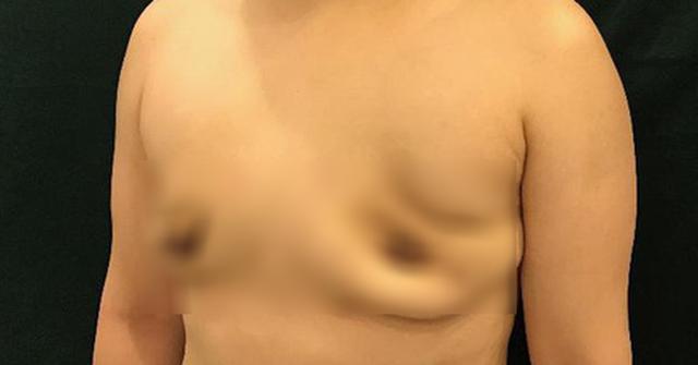 Mất ngực vì tiêm silicon lỏng nâng ngực - Ảnh 1.