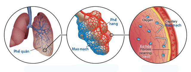 Xơ hóa phổi vô căn - Ảnh 1.