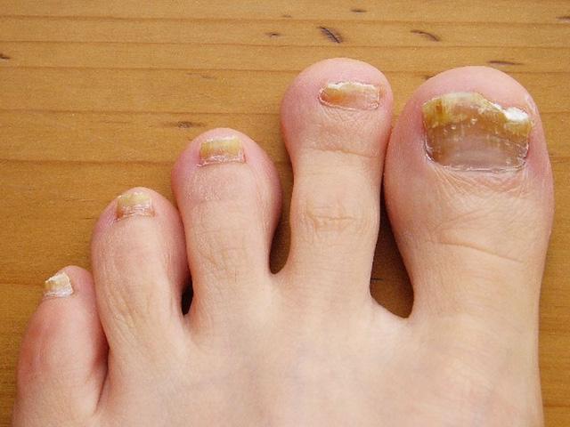 Những dấu hiệu ở bàn chân cảnh báo vấn đề sức khỏe - Ảnh 1.