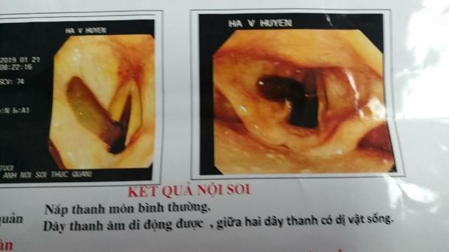 Đỉa trâu gần 10cm sống trong cổ họng bệnh nhân nhiều ngày - Ảnh 1.