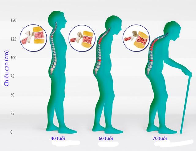 Loãng xương ở phụ nữ mãn kinh - Ảnh 1.