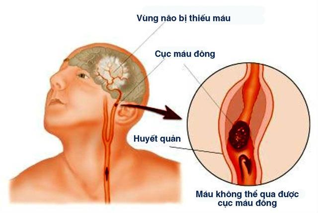 Bệnh nhồi máu não - Ảnh 1.