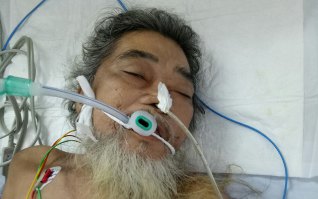Bác sĩ cứu sống một người thủng dạ dày nằm lề đường - Ảnh 1.