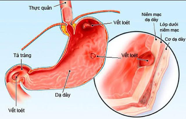 Những nguyên nhân hàng đầu gây bệnh sỏi thận - Ảnh 2.