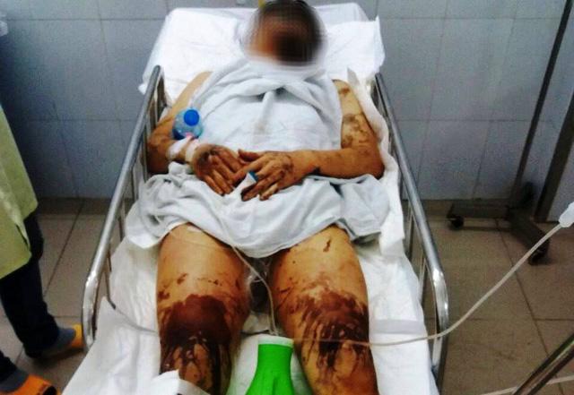 Việt kiều về quê ăn tết bị tạt axit, cắt gân chân - Ảnh 1.