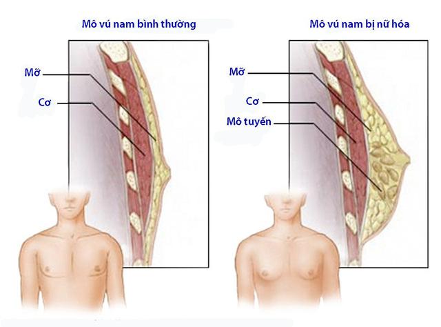 Nữ hóa tuyến vú ở nam giới - Ảnh 1.