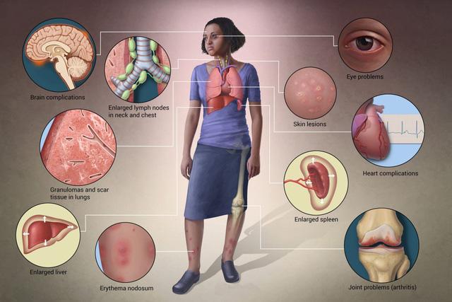 Bệnh sarcoidosis - Ảnh 1.