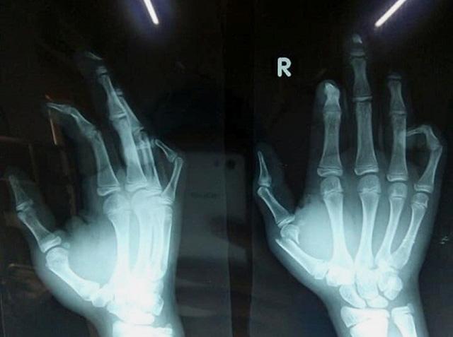 Học sinh lớp 8 giập nát ngón tay vì pháo nổ - Ảnh 1.