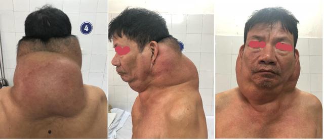 Phẫu thuật nhiều khối u khổng lồ cho cho người gấu - Ảnh 1.