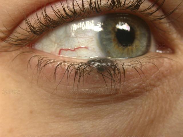 Nốt ruồi ở mi mắt - Ảnh 1.