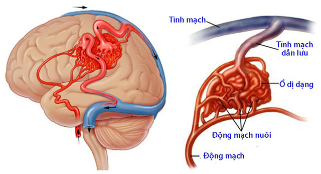 Dị dạng mạch máu dạng hang - Ảnh 1.
