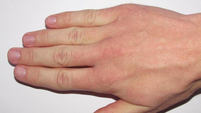 10 lý do khiến bạn luôn bị lạnh đôi bàn tay - Ảnh 1.