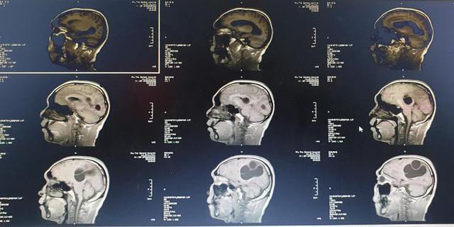 Ổ sán não khổng lồ trong não một nam giới ở Phú Thọ - Ảnh 1.