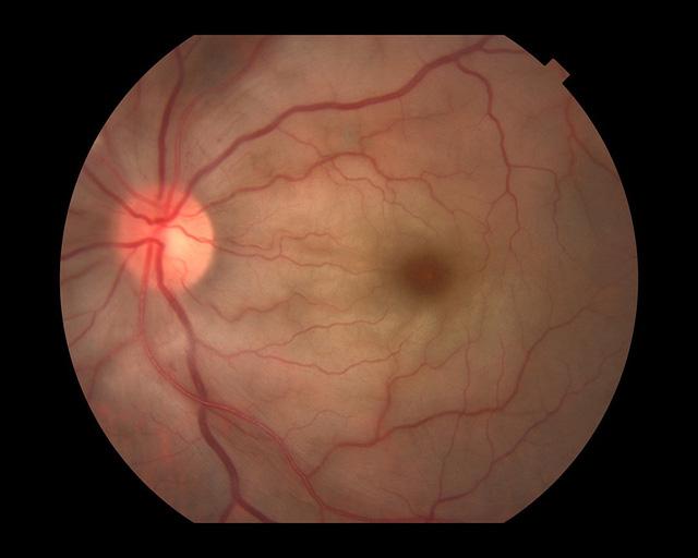 Tắc động mạch trung tâm võng mạc và tắc nhánh động mạch võng mạc - Ảnh 1.