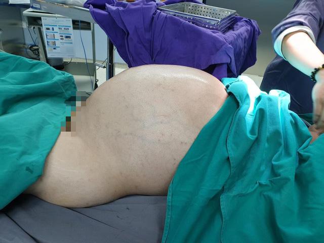 Phẫu thuật lấy khối u 25 kg từ bụng nam thanh niên - Ảnh 1.