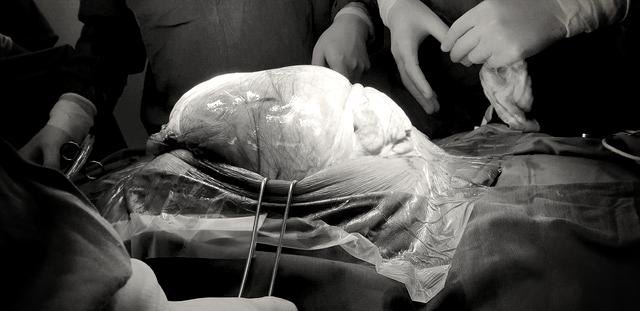 Phẫu thuật lấy khối u 25 kg từ bụng nam thanh niên - Ảnh 2.