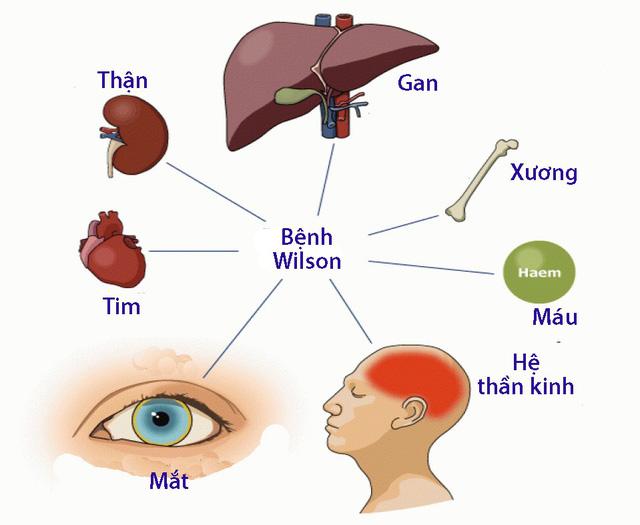 Bệnh Wilson - Ảnh 1.