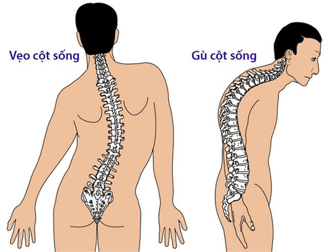 Bệnh lao xương - Ảnh 1.