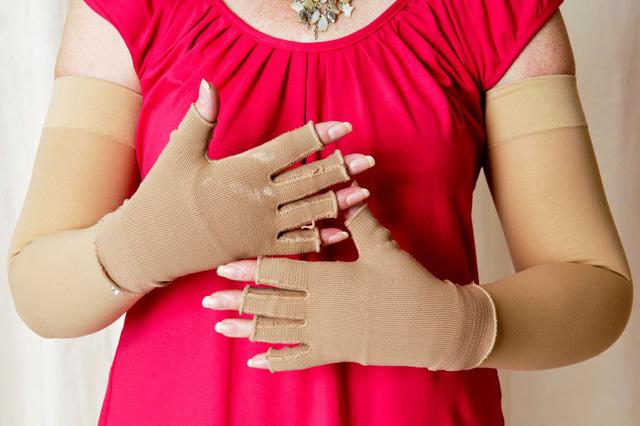 Xử lý phù tay sau điều trị ung thư vú - Ảnh 1.
