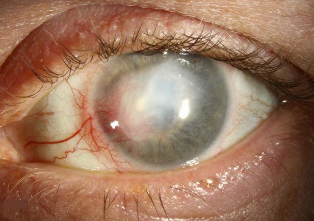 Viêm giác mạc herpes - Ảnh 1.