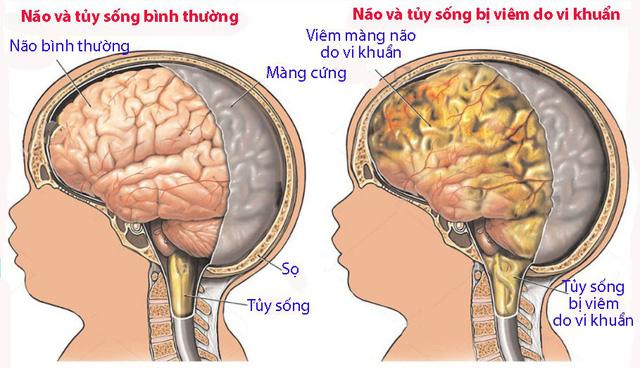 Viêm màng não sơ sinh - Ảnh 1.