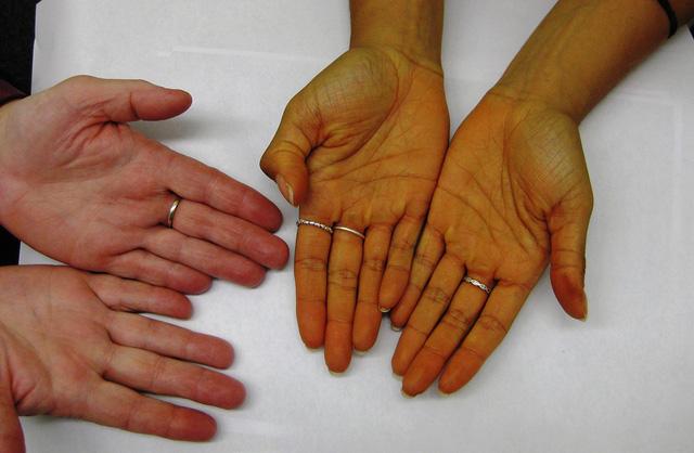 Dấu hiệu nhận biết bệnh gan các ma men nên đề phòng - Ảnh 1.