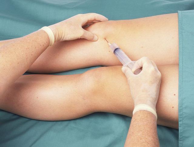 Tiêm khớp gối là phương pháp được sử dụng phổ biến hiện nay