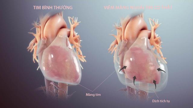 Bệnh viêm màng ngoài tim co thắt có thể dẫn tới suy tim - Ảnh 1.