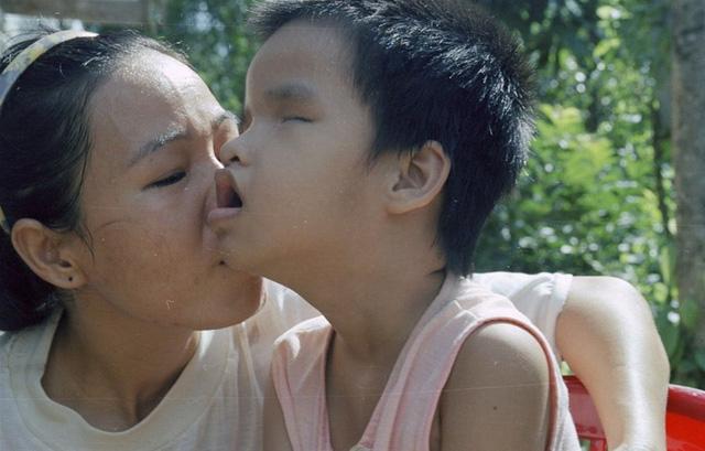 Nhật Bản hỗ trợ Việt Nam phòng chống các bệnh liên quan tới chất độc da cam dioxin - Ảnh 1.