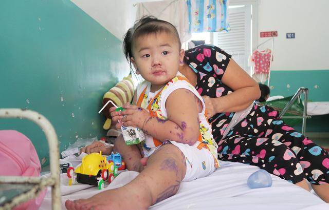 Gia tăng trẻ bị bệnh tay chân miệng tại TP. Hồ Chí Minh - Ảnh 1.