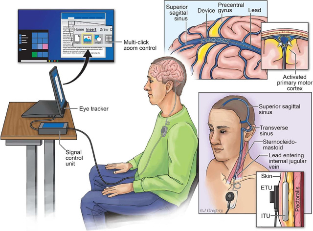 Kết nối não người với máy tính qua… mạch máu - Ảnh 1.