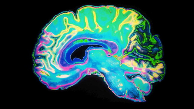 Kết quả nghiên cứu mới về cấu trúc não bộ của người phạm tội nhiều lần - Ảnh 1.