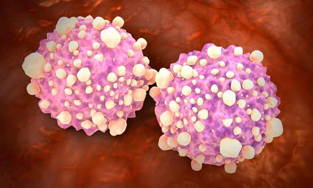 Xét nghiệm máu mới có thể phát hiện hơn 50 loại ung thư - Ảnh 1.