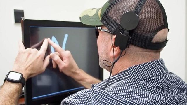 Cấy điện cực vào não giúp người mù nhìn được chữ cái, hình khối - Ảnh 1.