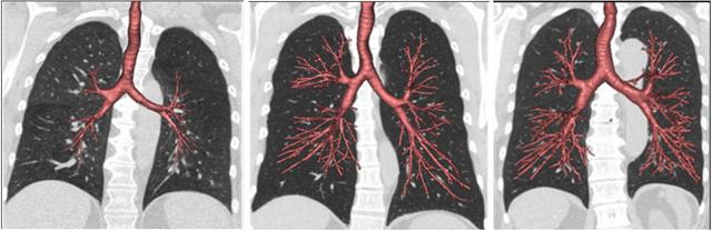 Nguyên nhân người không hút thuốc vẫn mắc bệnh phổi tắc nghẽn mãn tính - Ảnh 1.