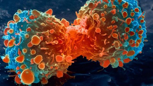 Phát hiện thời điểm vàng ngăn chặn ung thư di căn - Ảnh 1.