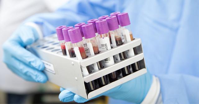 Phương pháp xét nghiệm máu phát hiện sớm 5 bệnh ung thư - Ảnh 1.