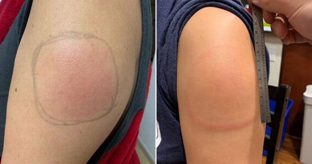 Hiện tượng tay sưng đỏ sau khi tiêm vaccine COVID-19 của Moderna - Ảnh 1.