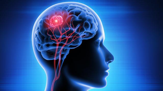 Phương pháp mới ngăn chặn sự lây lan của tế bào ung thư não - Ảnh 1.