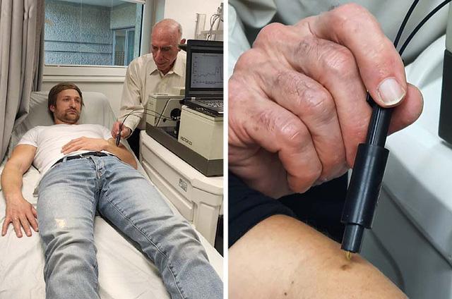 Israel phát triển công nghệ quang học giúp chẩn đoán nhanh ung thư da - Ảnh 1.