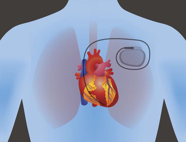 Vật liệu giúp sản xuất điện trong cơ thể người - Ảnh 1.