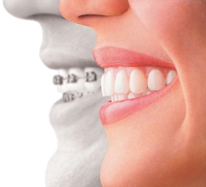 Nhìn răng biết tính cách? - Ảnh 3.