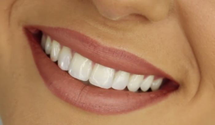 Nhìn răng biết tính cách? - Ảnh 2.