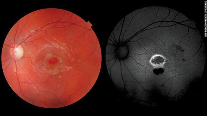Bé trai Hi Lạp 9 tuổi bị tổn thương mắt vĩnh viễn vì bút laser - Ảnh 1.