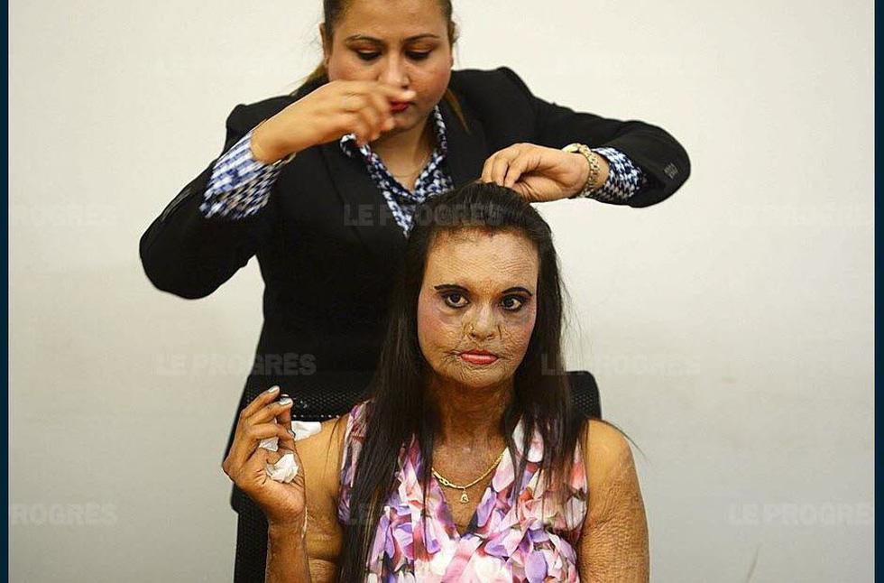 Cuộc trình diễn lạ thường của những nạn nhân bị tạt axít - Ảnh 6.