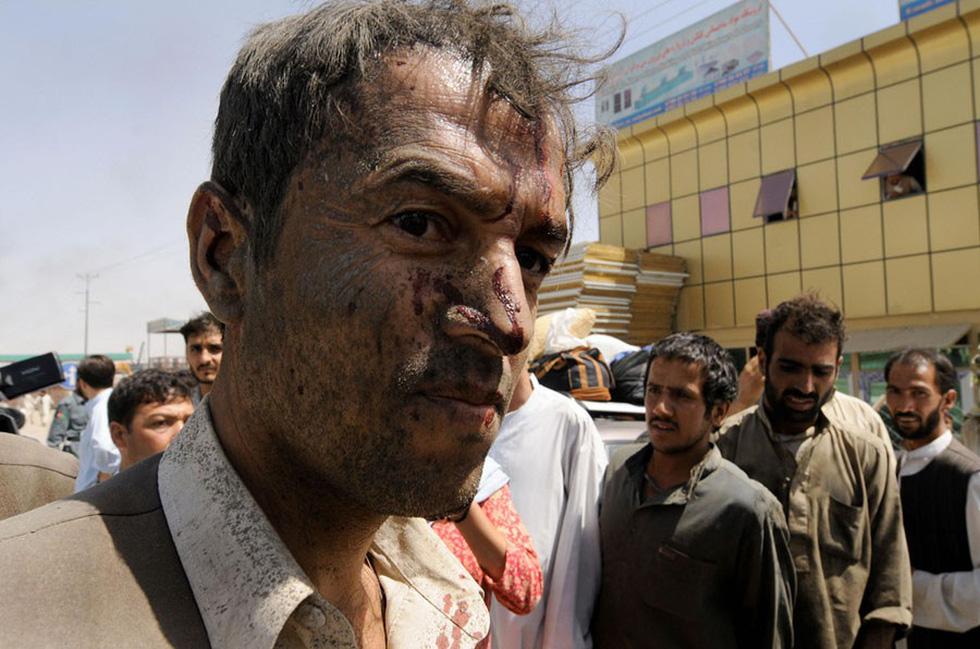 Những bức ảnh còn lại của phóng viên AFP vừa mất trong vụ đánh bom - Ảnh 2.