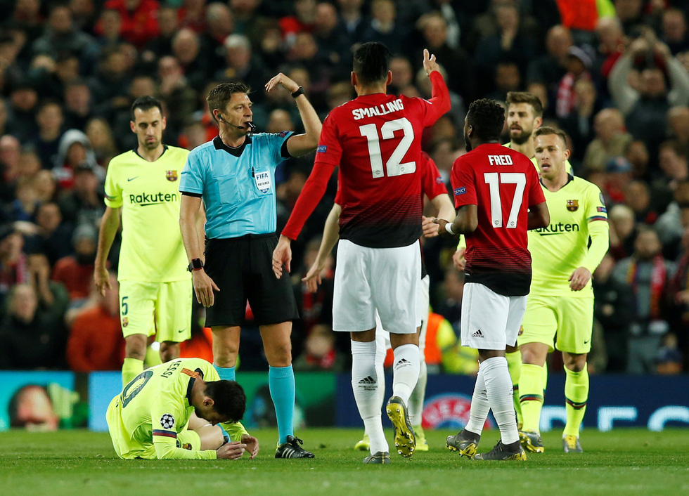 Messi đổ máu trong chiến thắng của Barca trước M.U - Ảnh 2.