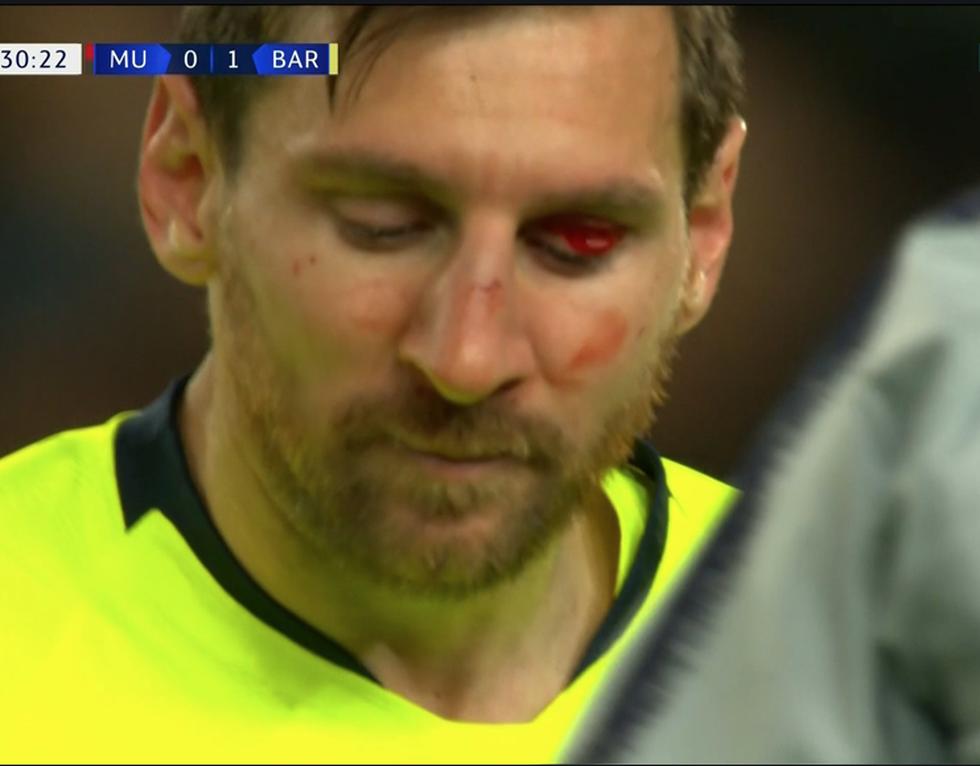 Messi đổ máu trong chiến thắng của Barca trước M.U - Ảnh 5.