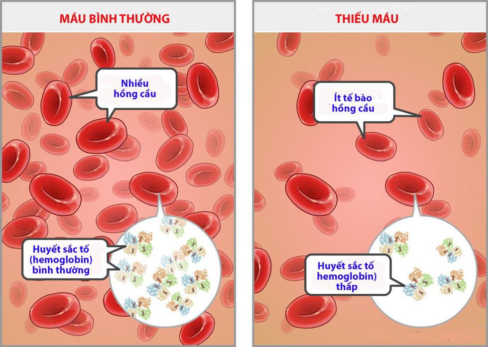 Bệnh thiếu máu do thiếu sắt ở trẻ sơ sinh - Ảnh 1.