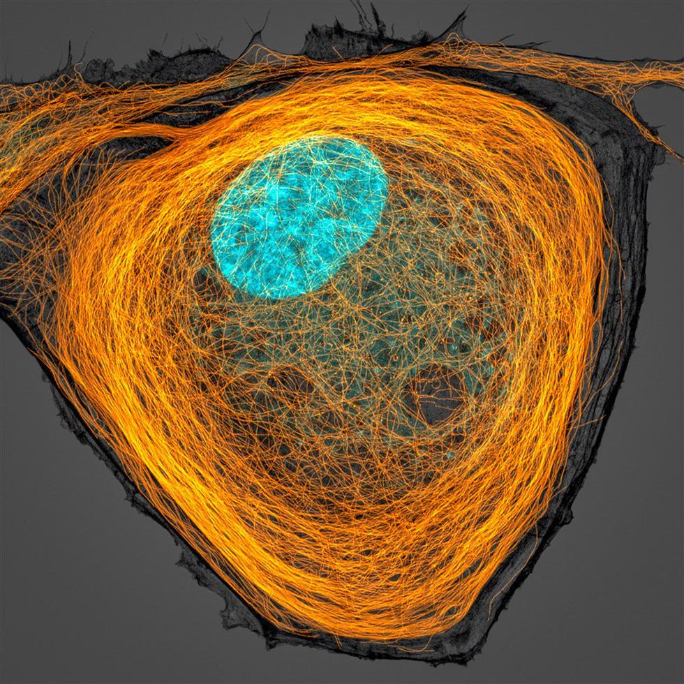 Ngắm thế giới nhỏ bé dưới kính hiển vi - Ảnh 6.